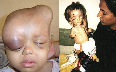 Niños víctimas del uranio empobrecido